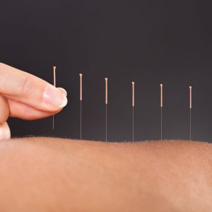 Acupuncture Treatment for Fertility, Weight Loss, Stress Relief-manhattan-wellness-group-product-shop-01 copy