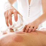Cupping Therapy Sessions-manhattan-wellness-group-product-shop-02