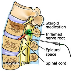 Epidural Steroid injections Treatment
