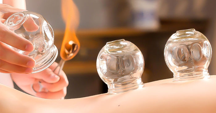 The-Best-Cupping-Near-Me-for-Pain-Relief-Manhattan-Wellness-Group