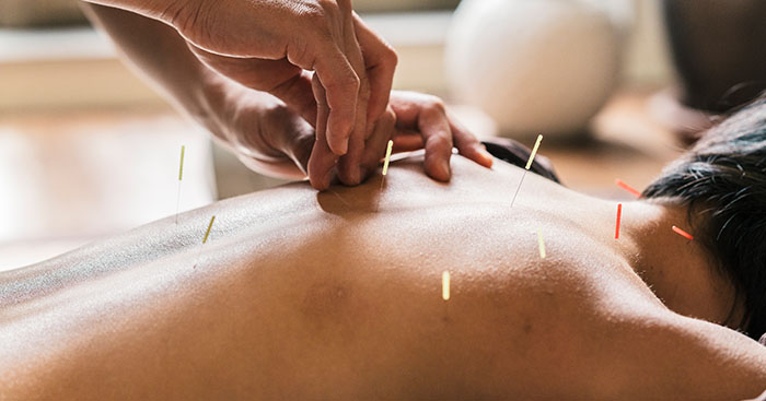 Acupuncture-Therapy-at-Manhattan-Wellness-Group