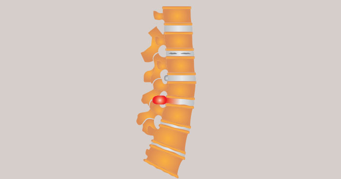How long for Herniated disc back pain-Bulging disc back pain-Degenerative disc disease pain to heal without surgery 011