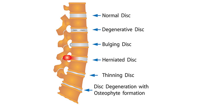 How long for Herniated disc back pain-Bulging disc back pain-Degenerative disc disease pain to heal without surgery