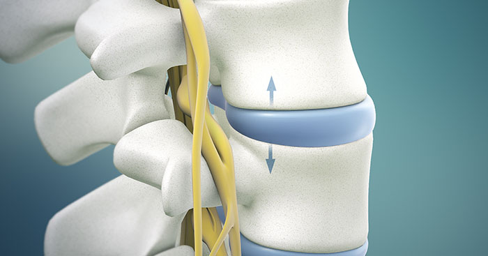 Lumbar Disc Herniation Treatment & Pain Relief