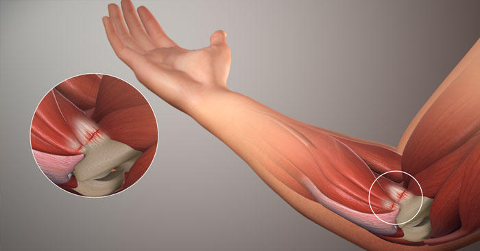 Tennis-elbow-pain-golfer-elbow-01