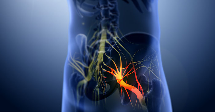 What-is-Sciatica-Pain-Relief