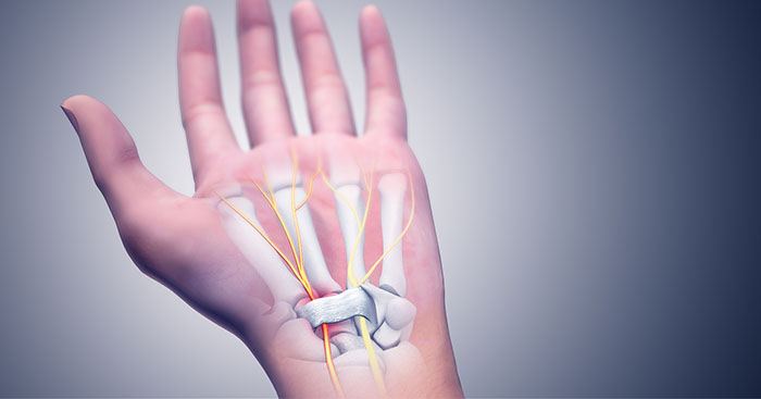 Can chiropractic help carpal tunnel?